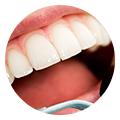 CHIRURGIE : Dentiste Marrakech